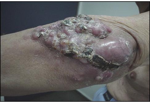 el queso oaxaca tiene acido urico alimentos prohibidos para enfermos gota como saber si tienes gota en el pie